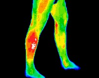 Thermal_Imaging