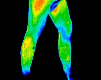 Thermal_Imaging_2